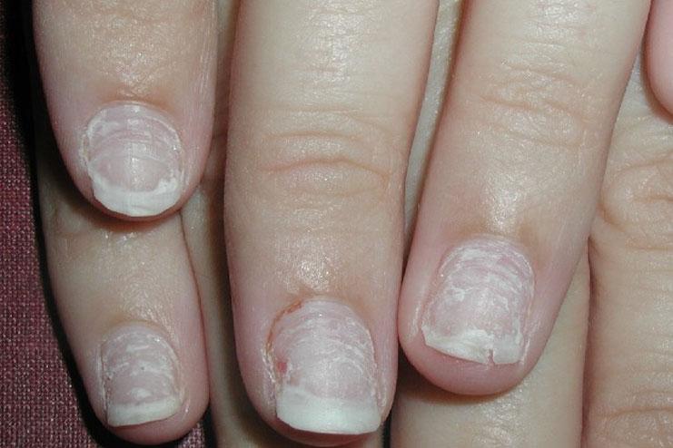 12 Beauty Hacks For Repairing Damaged Nails Beauty Tips