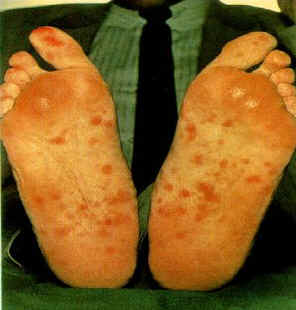 Rash caused by Syphilis on Feet