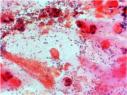 Microscopic image of Bacterial Vaginosis
