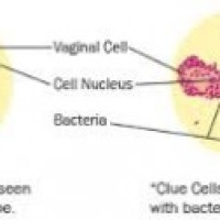 Bacterial Vaginosis Pictures