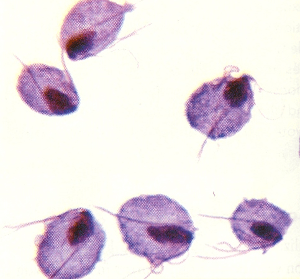 colony of Trichomonas organisms