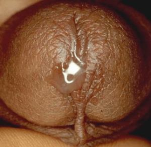 Trichomoniasis discharge from male penis