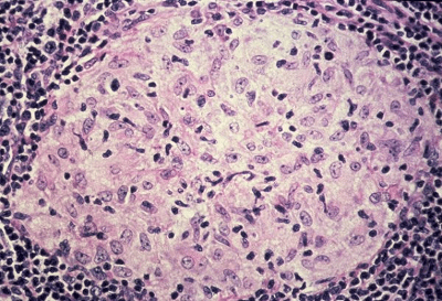 Granuloma cells