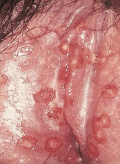 HSV 2 in female genitals