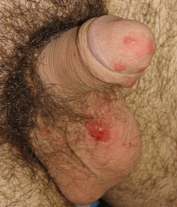 Scabies on male genitals