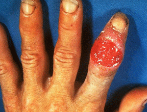 Finger developed a ulcer from syphilis