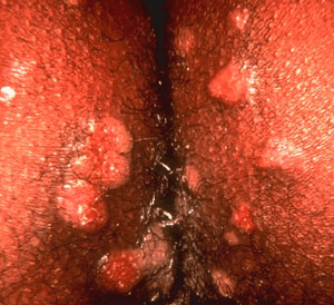Vagina with syphilis