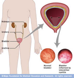 Male anatomy effected by Diagram of male anatomy effected by a urinary tract infections