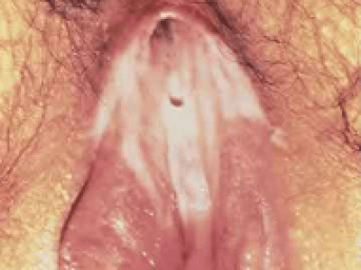 Bacterial Vaginosis in female genitals