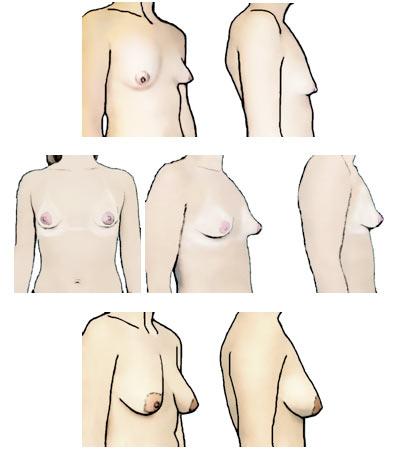 vjntage cone tits