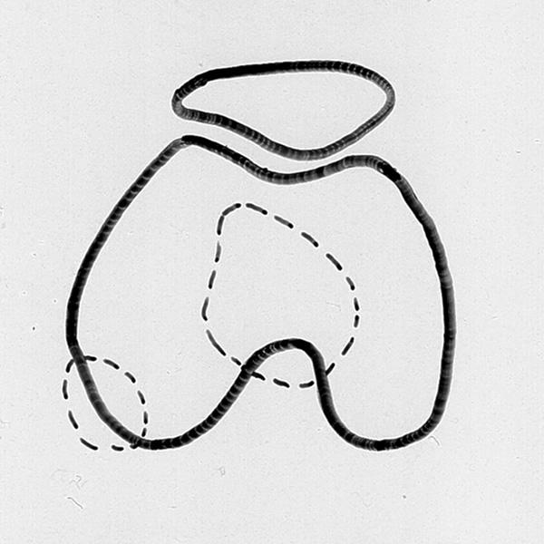patella diagram