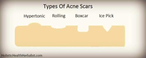 how to make acne scars go away naturally