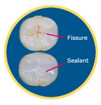 fissue-and-dental-sealant
