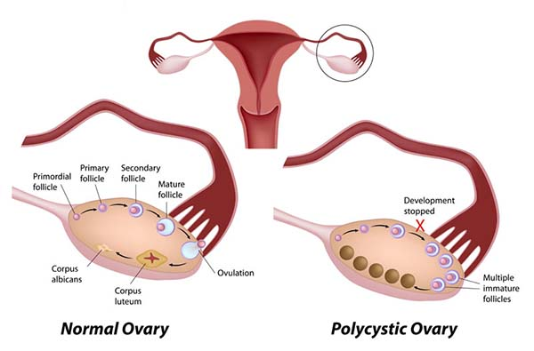 How to Ovulate With Polycystic Ovary Syndrome (PCOS)
