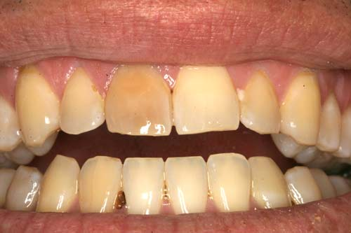 Internal and External Bleaching of Teeth - Homeopathic Dentistry