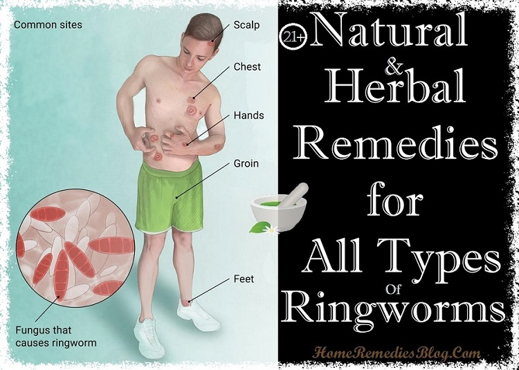 21+ Simple Homemade Remedies for Ringworm That Actually Works