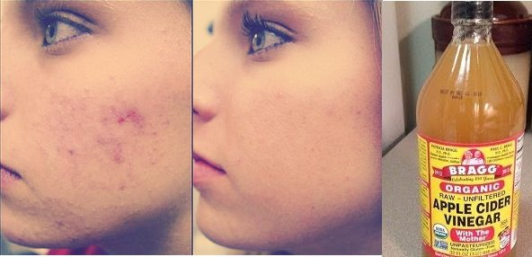 pictures How to cure pimples acne with apple cider vinegar