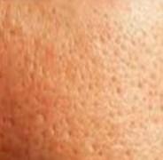 pore-minimizer-home-remedy
