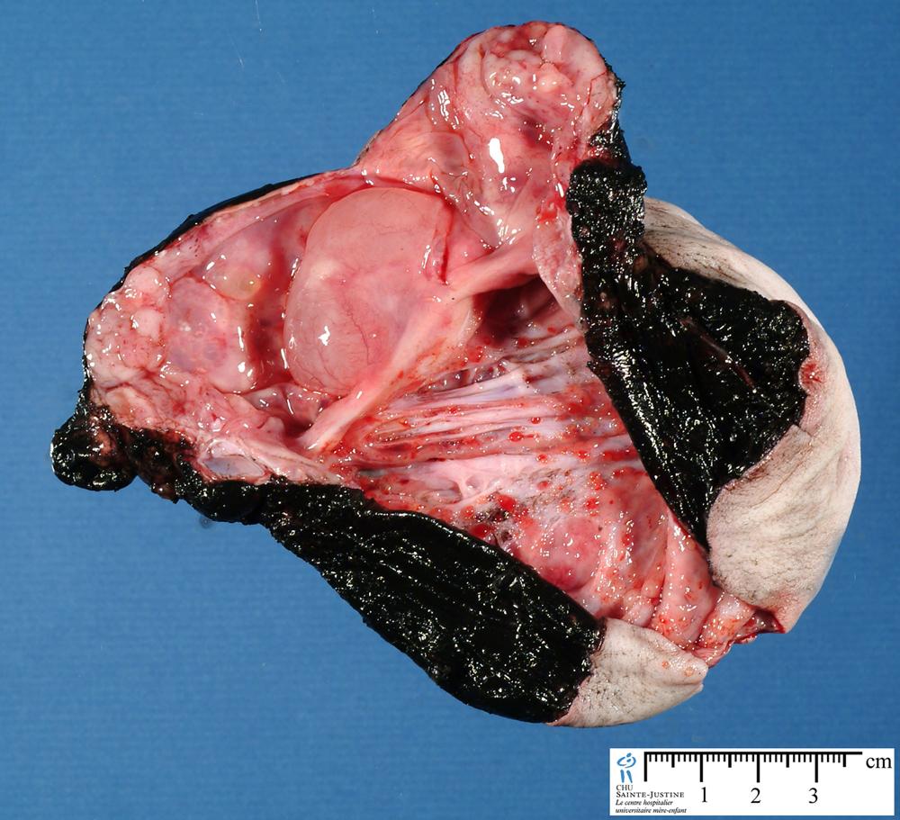 sacrococcygeal teratoma