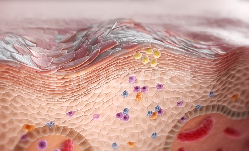 Keratinocytes and immune cells Hybrid Medical Animation - Keratinocytes