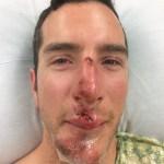 Post stitches.
