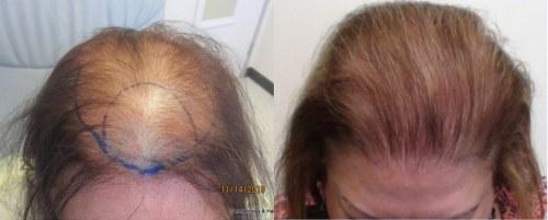 womens-hair-restoration-la