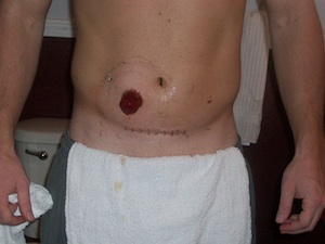 stoma right after surgery