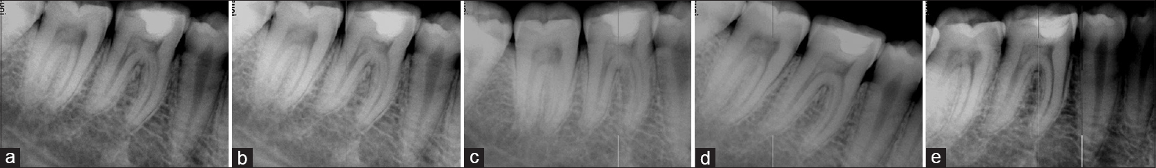 Preventive endodontics by direct pulp capping with restorative