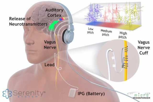 Could Nerve Implants Be The Future Cure For Tinnitus 1