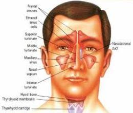 Tentang Penyakit Sinus