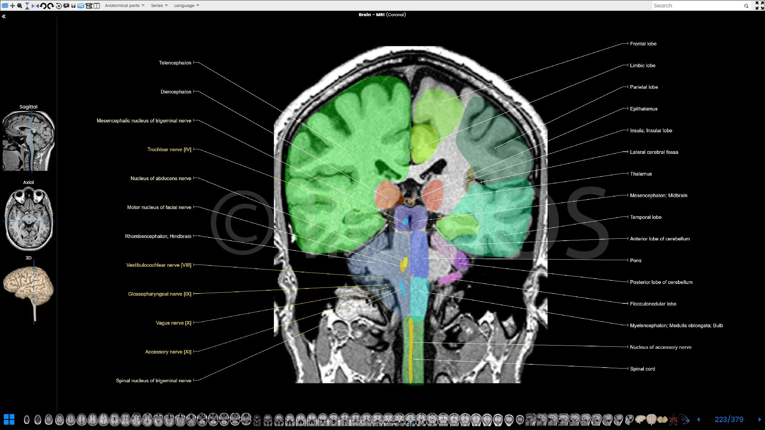 Wallpaper Seram 3d Brain Atlas Of Human Anatomy With Mri