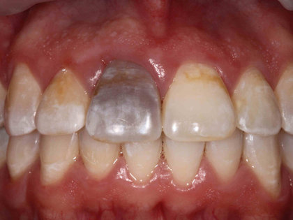 Internal Bleaching - Blog - Dr King\u0027s Family Dentistry