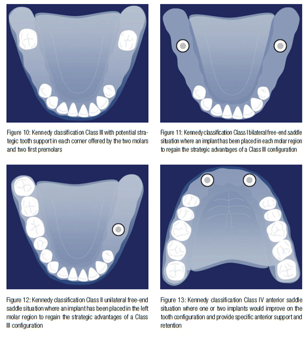 Removable partial dentures and strategic implant placement Implant