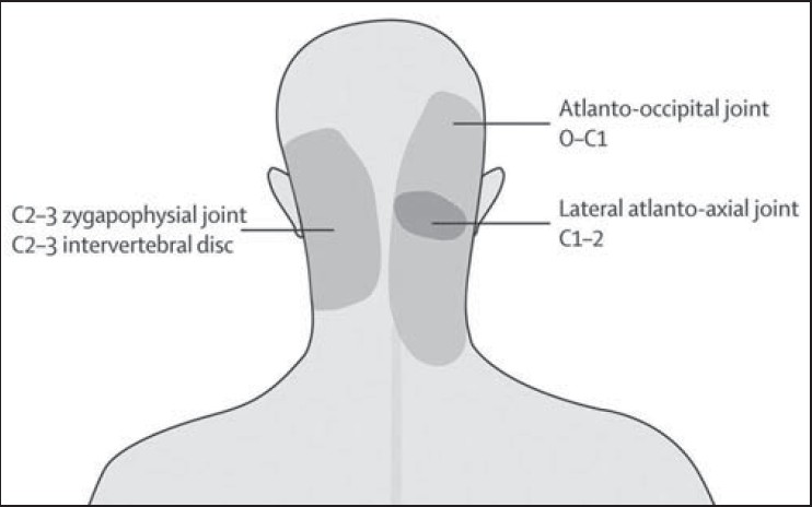 Lateral atlanto-axial joint block for cervical headache Mallick SP