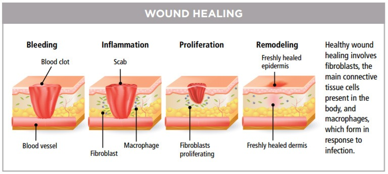 Wound Healing Center at Inova Loudoun treats complex wound and
