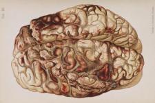 Hofmann_Lehrbuch_brain_gunshot_m