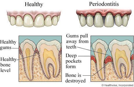 Bone Defects and Furcation Involvement Part 1 Intelligent Dental