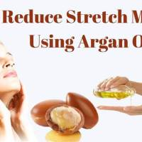 Reduce Stretch Marks Using Argan Oil
