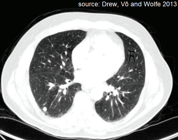 A figure from Drew, Vo and Wolfe's 2013 piece on gorillas in radiology images