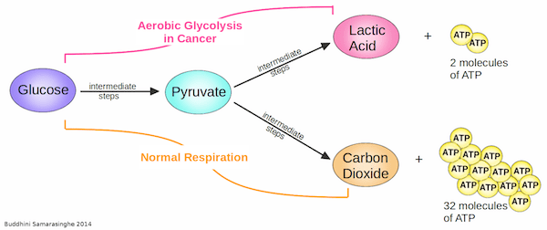In cancer cells undergoing aerobic respiration (pink pathway), glucose gets broken down into pyruvate and then lactic acid, producing only two molecules of ATP. In cells undergoing normal respiration (orange pathway), glucose gets completely broken down into pyruvate, which is further processed into carbon dioxide, producing 32 molecules of ATP. (Image credit: Buddhini Samarasinghe)