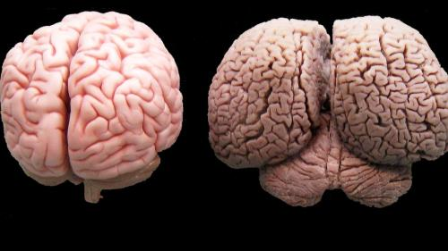Human brain on the left, dolphin brain on the right.