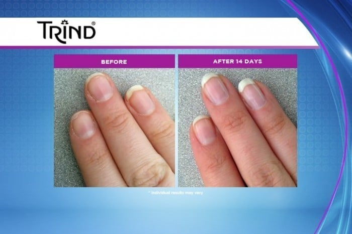 Beautiful Nails Are No Problem With Trind Jenns Blah