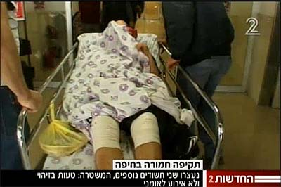 One of the victims of Saturday's anti-Semitic attack being wheeled in for treatment.
