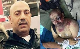 Ahmad Izz Halaweh before and after his encounter with PA security officers. / Photo credit: Arab media