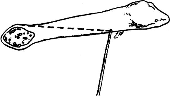 diagram of bunion
