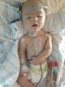 open-heart surgery, down syndrome, pictures