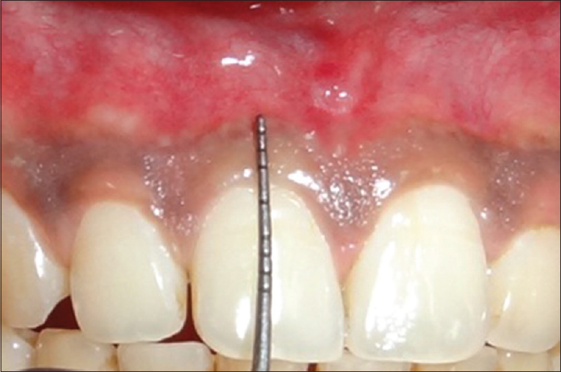 Assessment of the width of attached gingiva using different methods