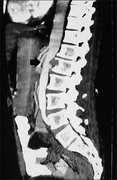 Superior mesenteric artery syndrome - A clinicoradiologic case