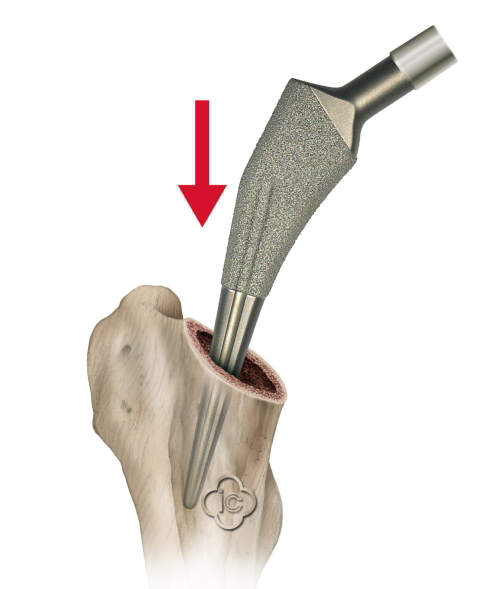Total Hip Replacement Surgery (Hip Prosthesis) Joint-surgeon