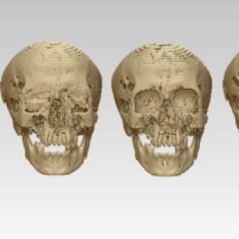 Nesmin skull-filters